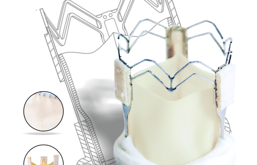 Клапан-содержащие стенты для коррекции пороков сердца