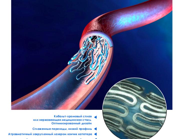 Стенты матричные для периферических и коронарных артерий