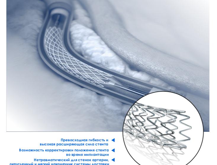 Стенты артериальные саморасширяющиеся периферические и коронарные