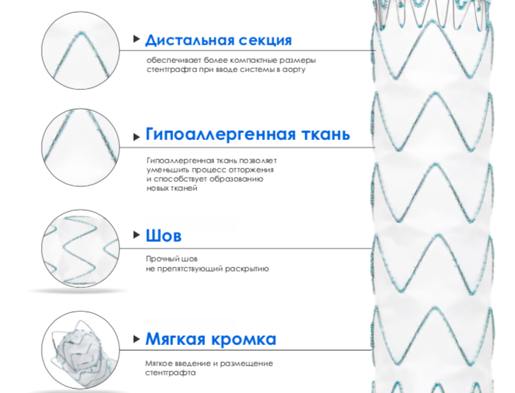 Система аортального стентграфта для коррекции аневризм грудной аорты
